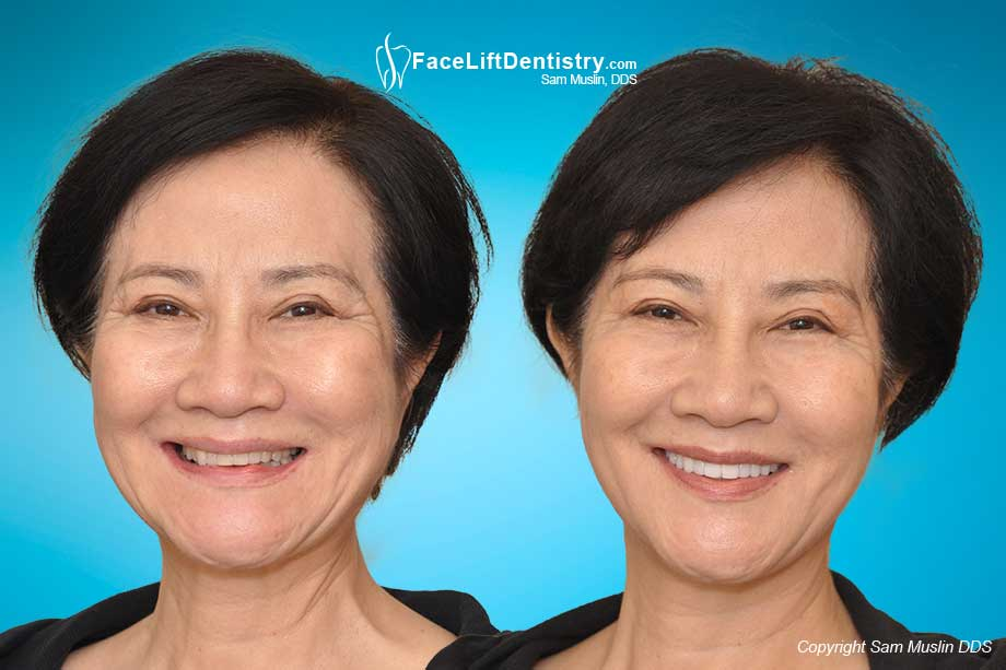 Before and after VENLAY® Restorations were used to correct the collapsed bite.