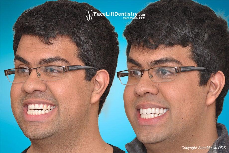 Venlay Bite Correction No Jaw Surgery