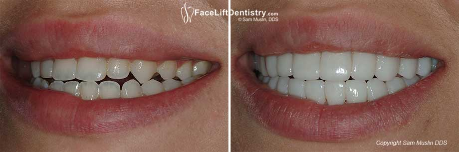 Before and After photo showing teeth closeup treated with with Venlay Restorations.