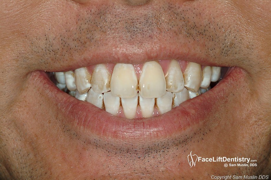 replacing tooth enamel