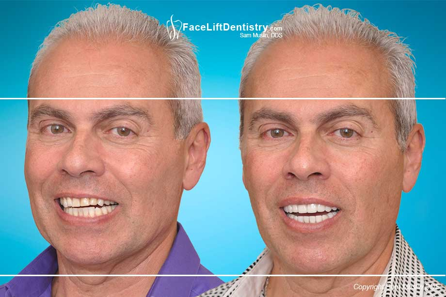 Worn Teeth resulting in a slanted smile - Before and After Treatment