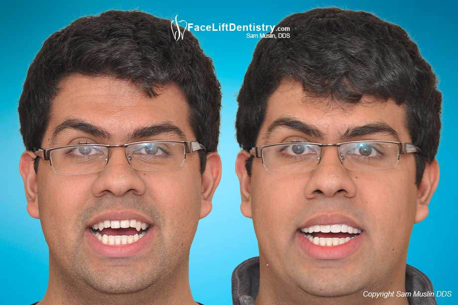VENLAY Restorations for Underbite Correction - Before and After