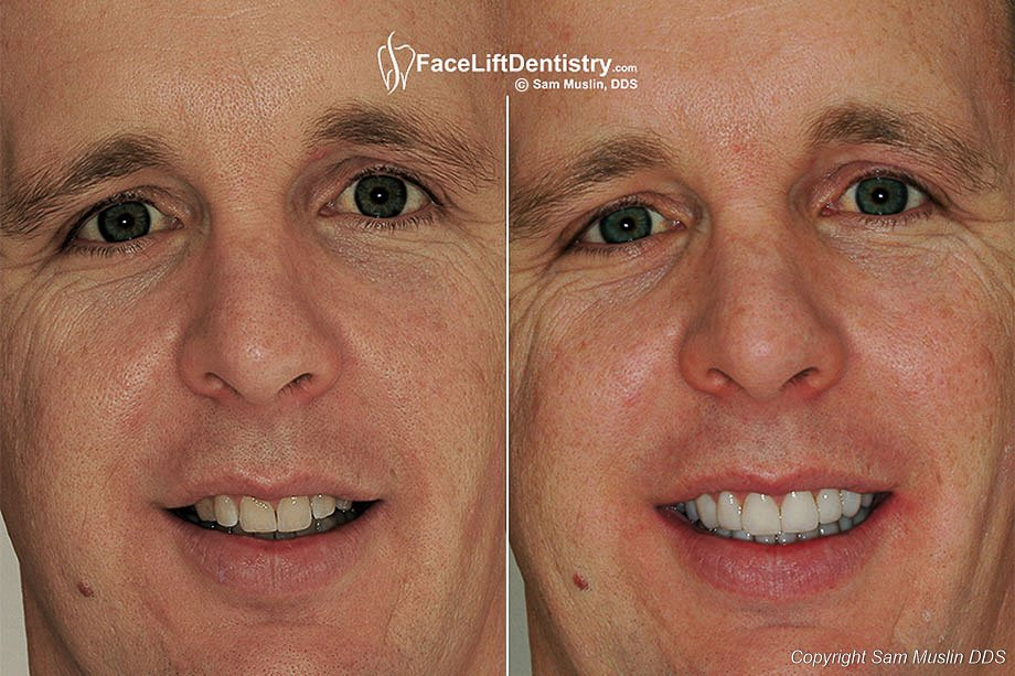 VIP Cosmetic Dentistry