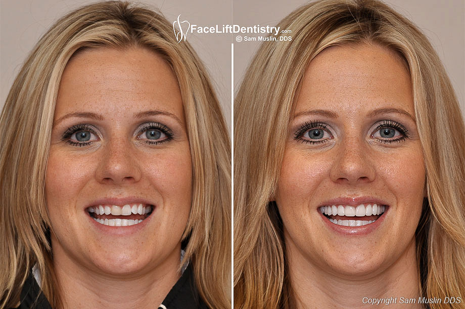 Natural Looking Prepless Porcelain Veneers for a Wider Smile - Before and After Treatment