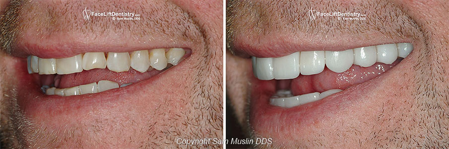 Close-up Before and After of Worn Teeth Repaired