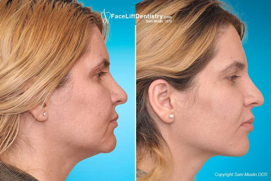 face lift dentistry u00ae