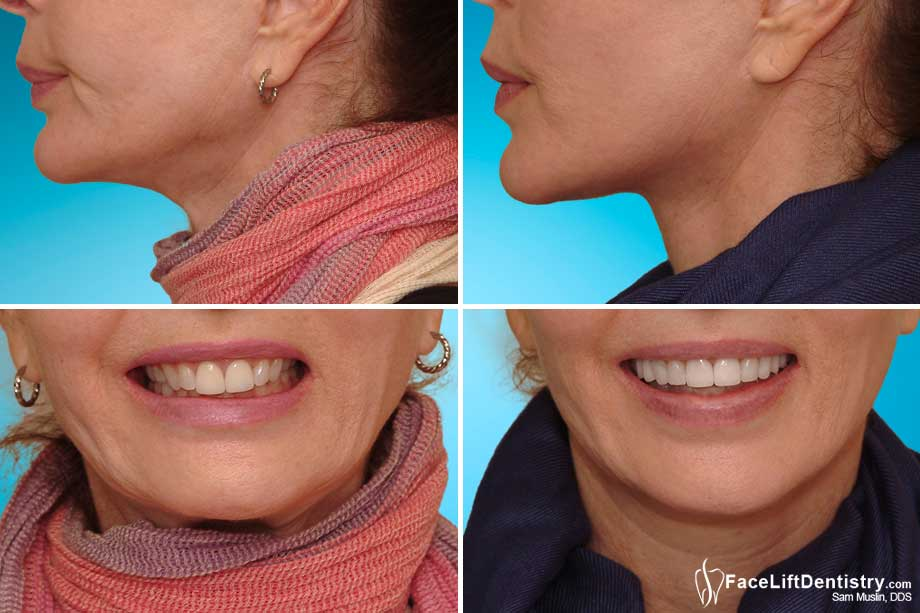 Before and After Facial Profile and Overbite Correction