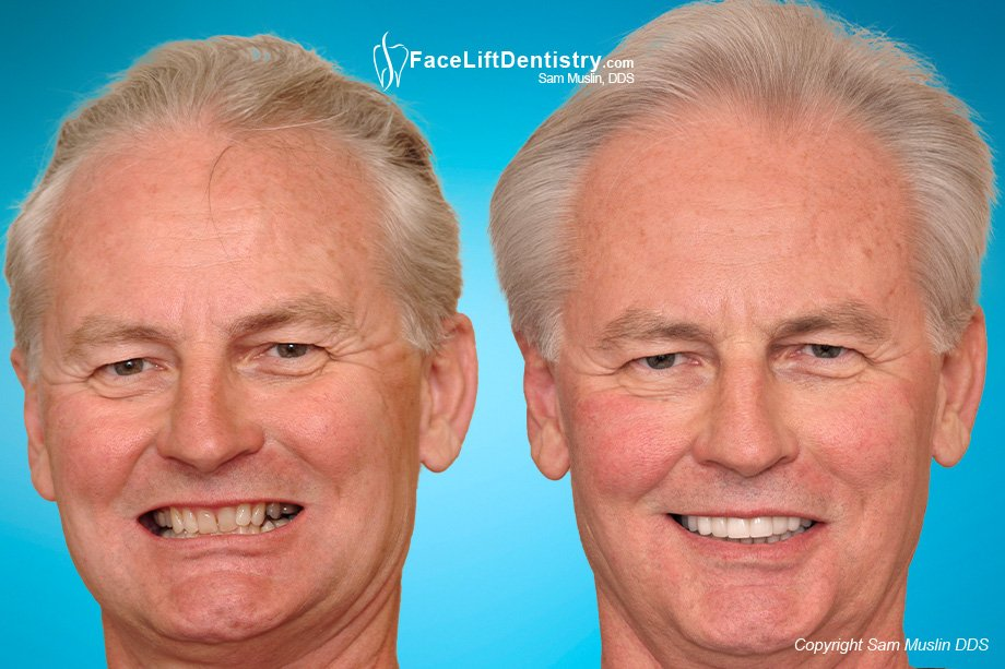 Before and After photo shows how Face Lift Dentistry<sup>&reg;</sup> transform facial collaps and older faces.