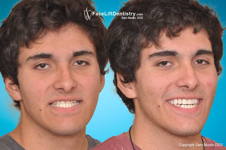 Before and After non_surgical Underbite Correction