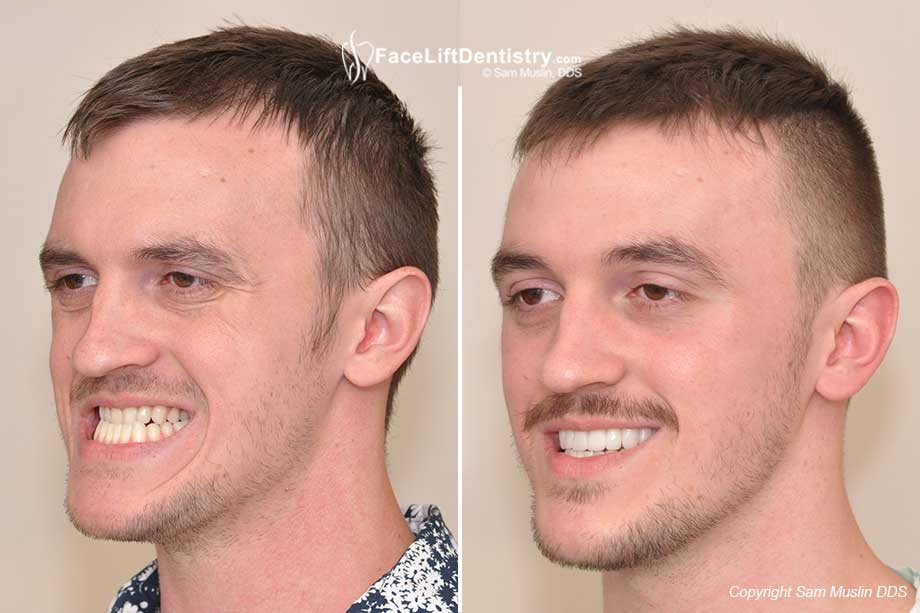 Class-III Malocclusion Correction