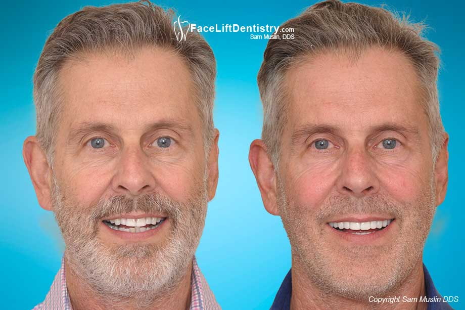 Before and After Jaw Surgery Alternative