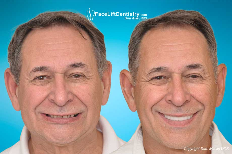 Before and After photo showing Ageing and Facial Collapse reversal without surgery