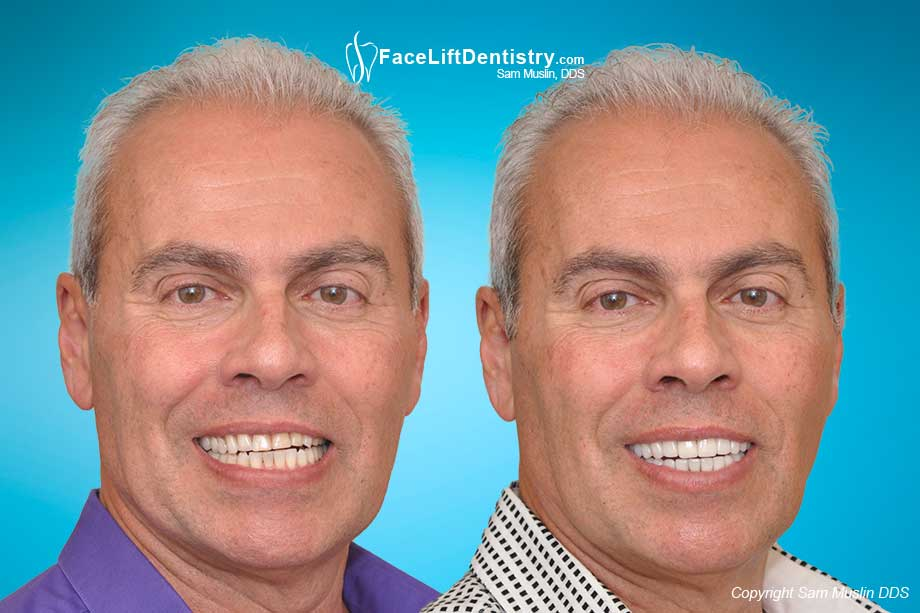 Worn Down Teeth and Aging Faces - Before and After