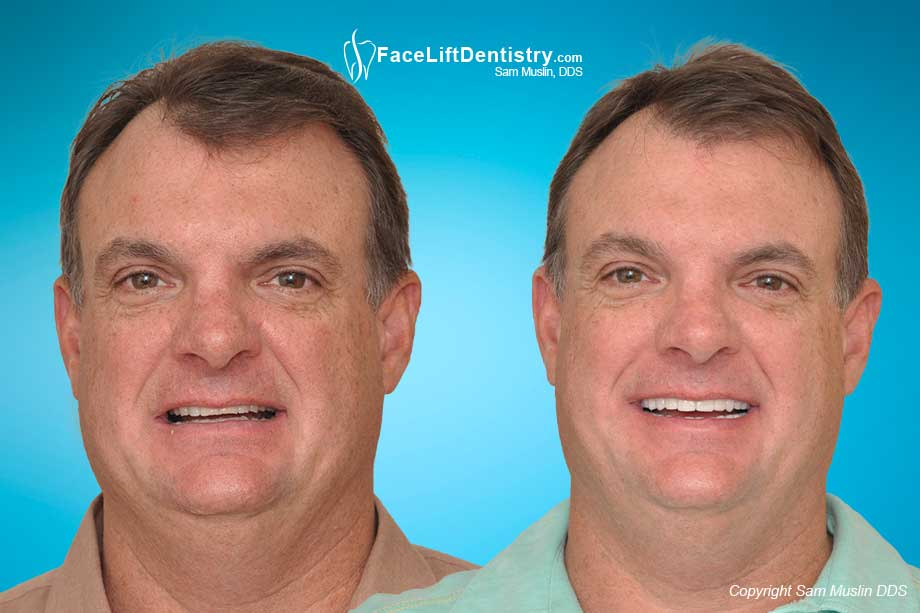 Overbite Correction for the Older Adult