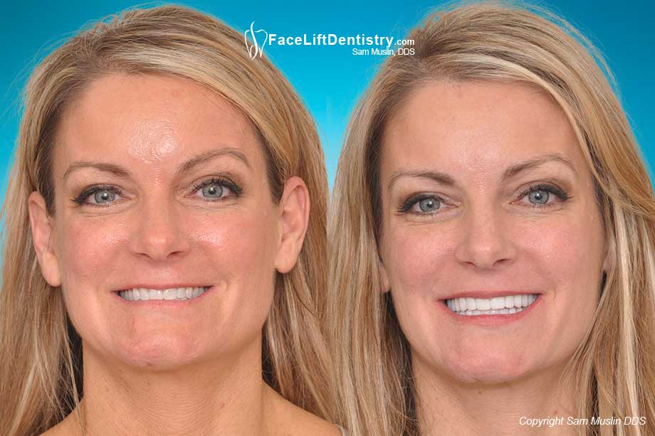 Before and After Anti-Aging Face Lift Dentistry®
