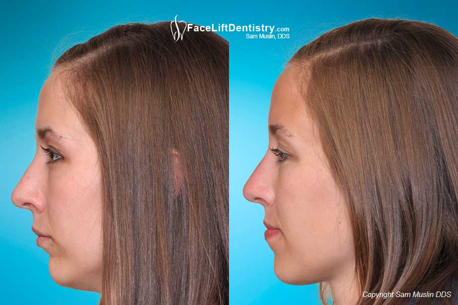 Before and After photo showing a non-ideal profile and a small chin, corrected without surgery or braces with the Face Lift Dentistry<sup>&reg;</sup> method.