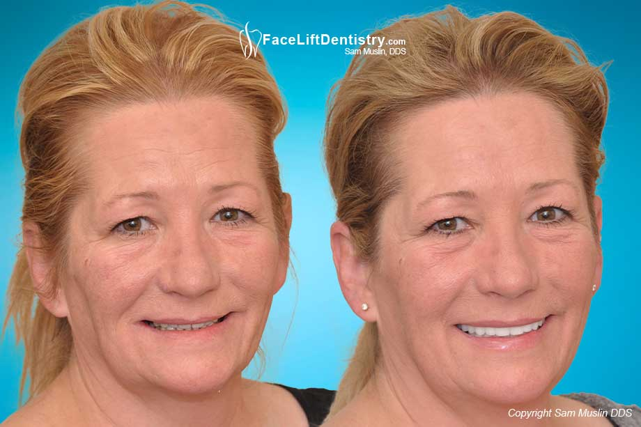 Face Lift Dentistry 174 The Future Of Bite Correction