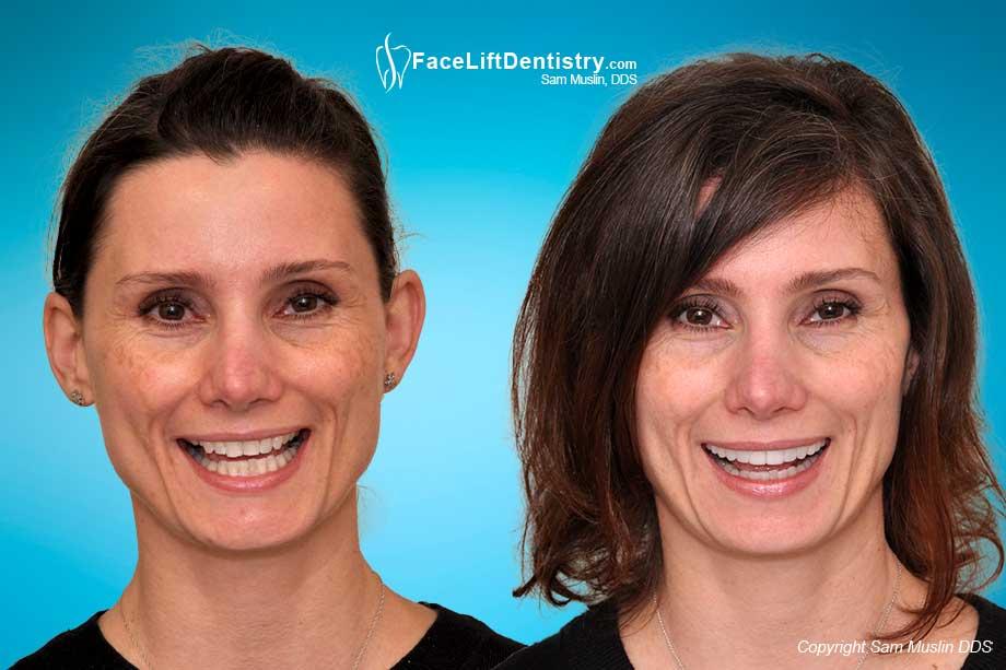 The new dental facelift'