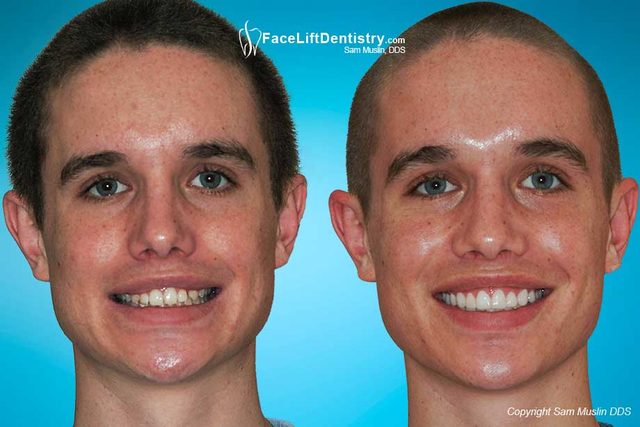 Before and After photo showing overbite correction without braces using the Face Lift Dentistry<sup>&reg;</sup> method