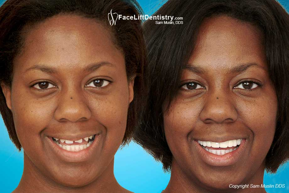 Before and Afetr Photo showing how Face Lift Dentistry<sup>&reg;</sup> can correct the bite and close the gaps between teeth without surgery or braces