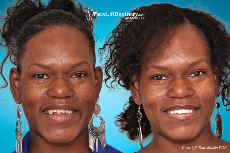 Before and After Photos: Underbite, Overbite, Open Bite