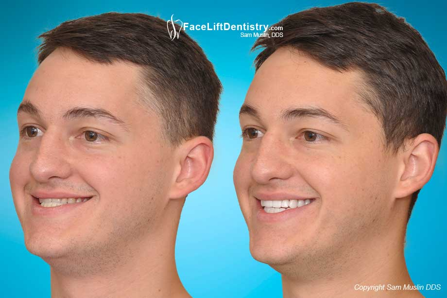 Adult Underbite Correction