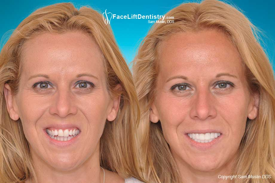 Before and After Overbite Correction
