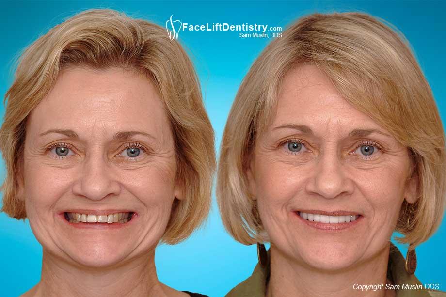 Anti-aging Facelift Dentisry®