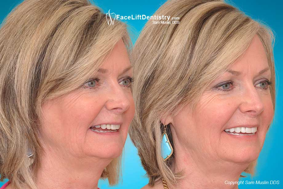 Before and After Anti-Aging Dentistry and Overbite Correction