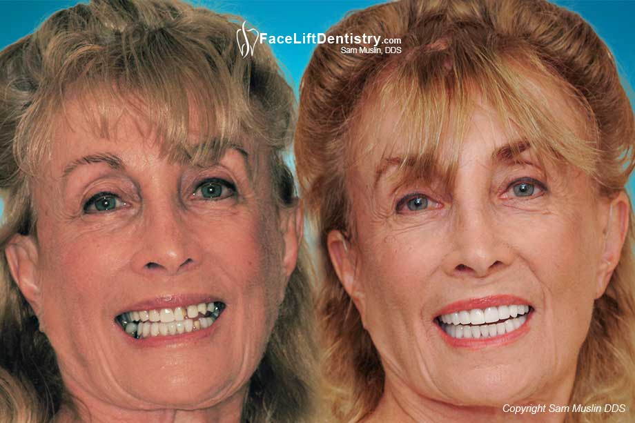Bad Porcelain Veneers