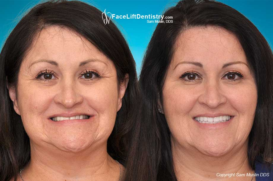 Before and After Anti-Aging Bite Correction