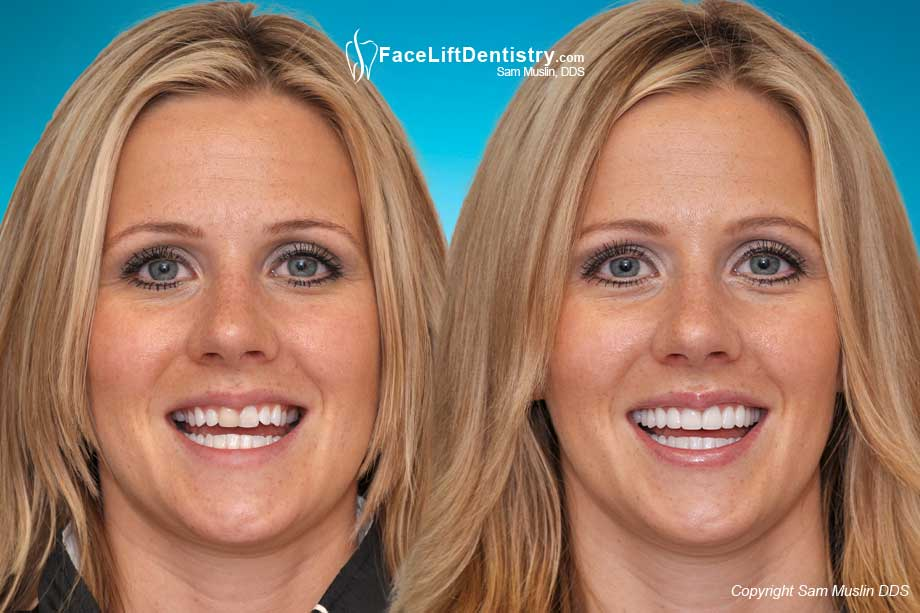 Before and After Prepless Porcelain Veneers