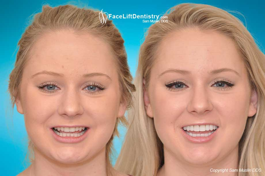 Small Teeth and Overbite Correction with VENLAY®