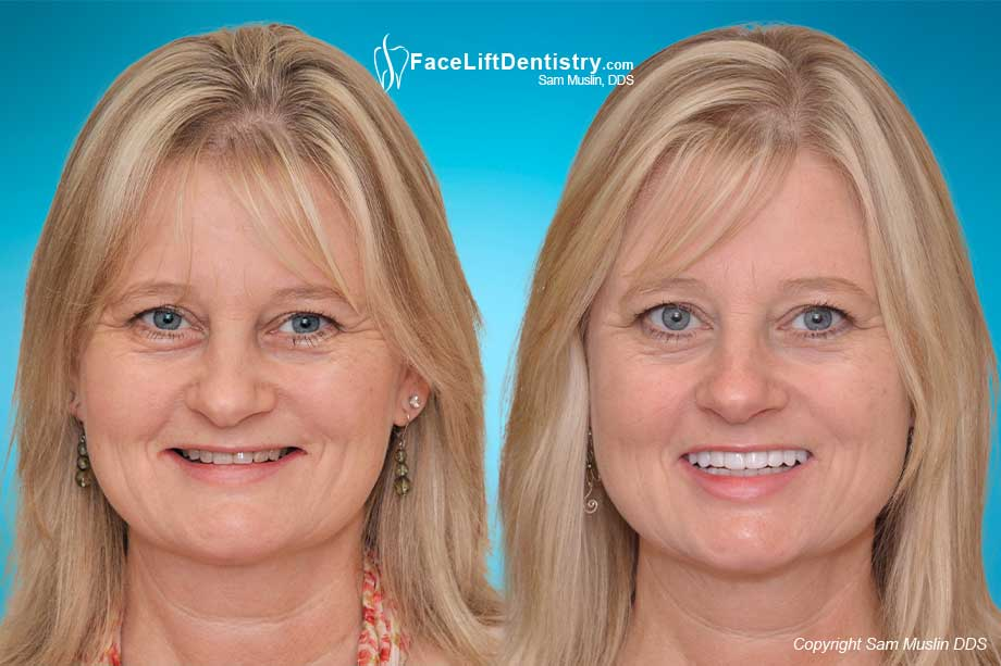 Before and After Deep Overbite Correction