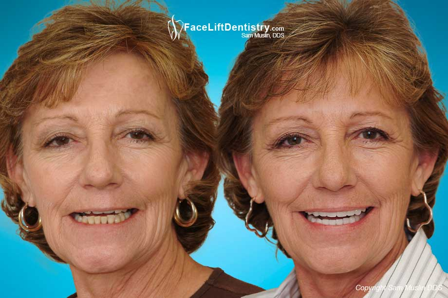 Before and After Anti-Aging Dentistry Mouth Reconstruction