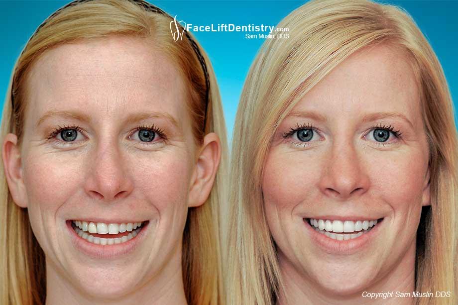 Facelift Dentistry Sam Muslin Dds