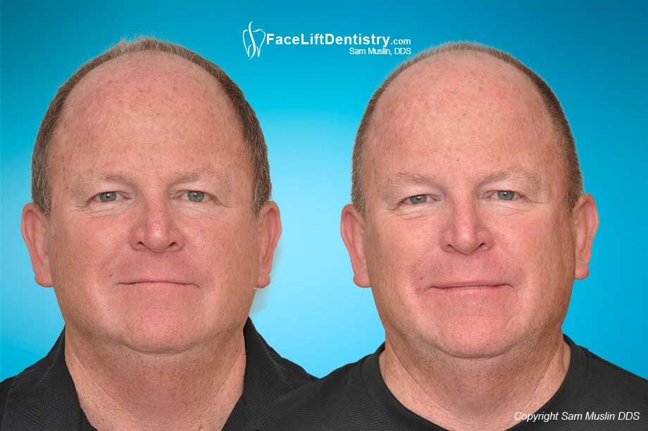 Before and After treatment to show more upper teeth when talking