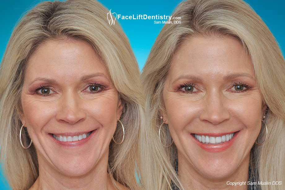 Before and After photo showing bite correction for a wider smile and younger looking face with the Face Lift Dentistry<sup>&reg;</sup> method.