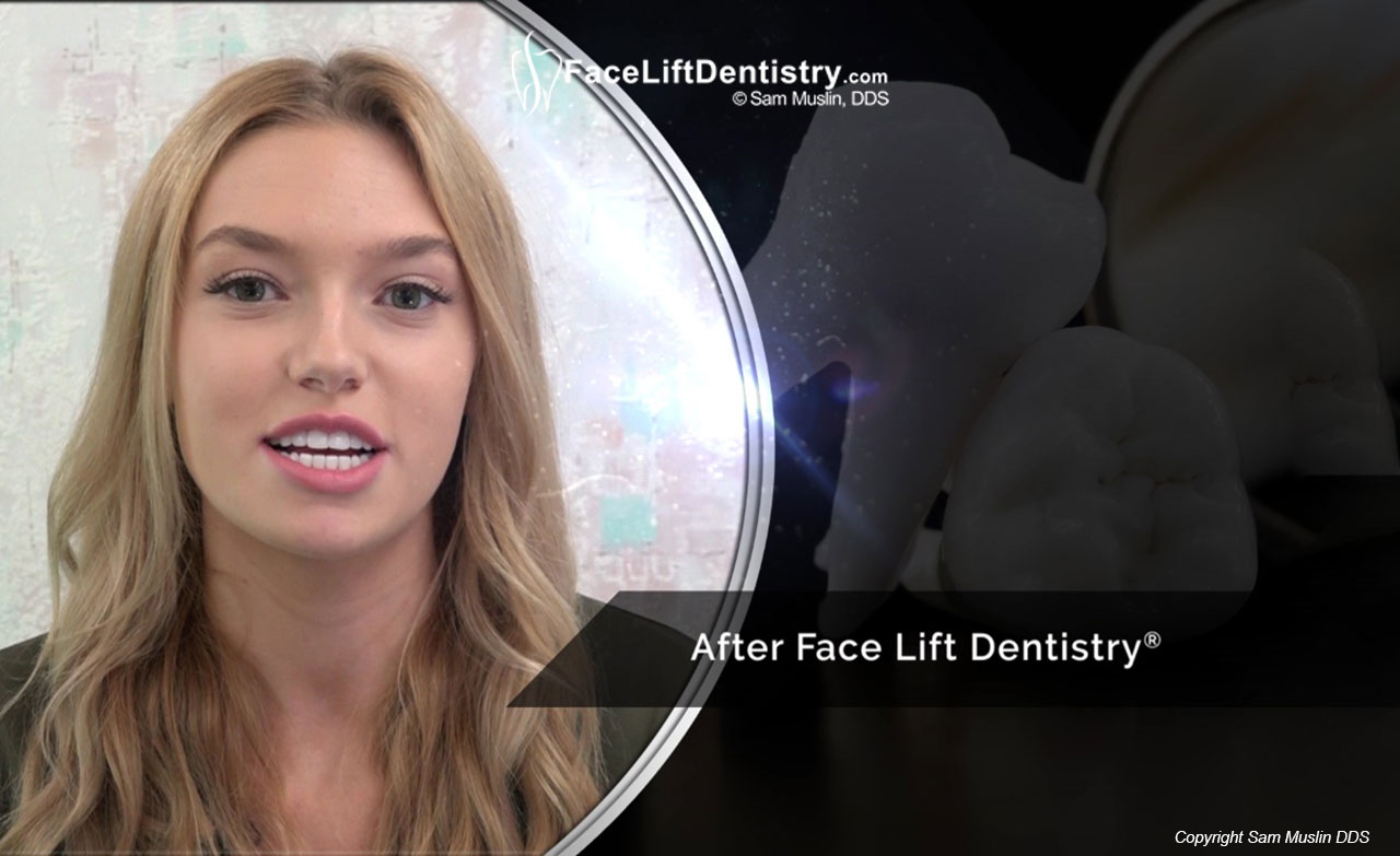 Underbite Correction and the Ideal Jaw Position