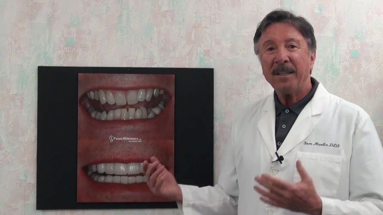video Jaw Surgery Alternative