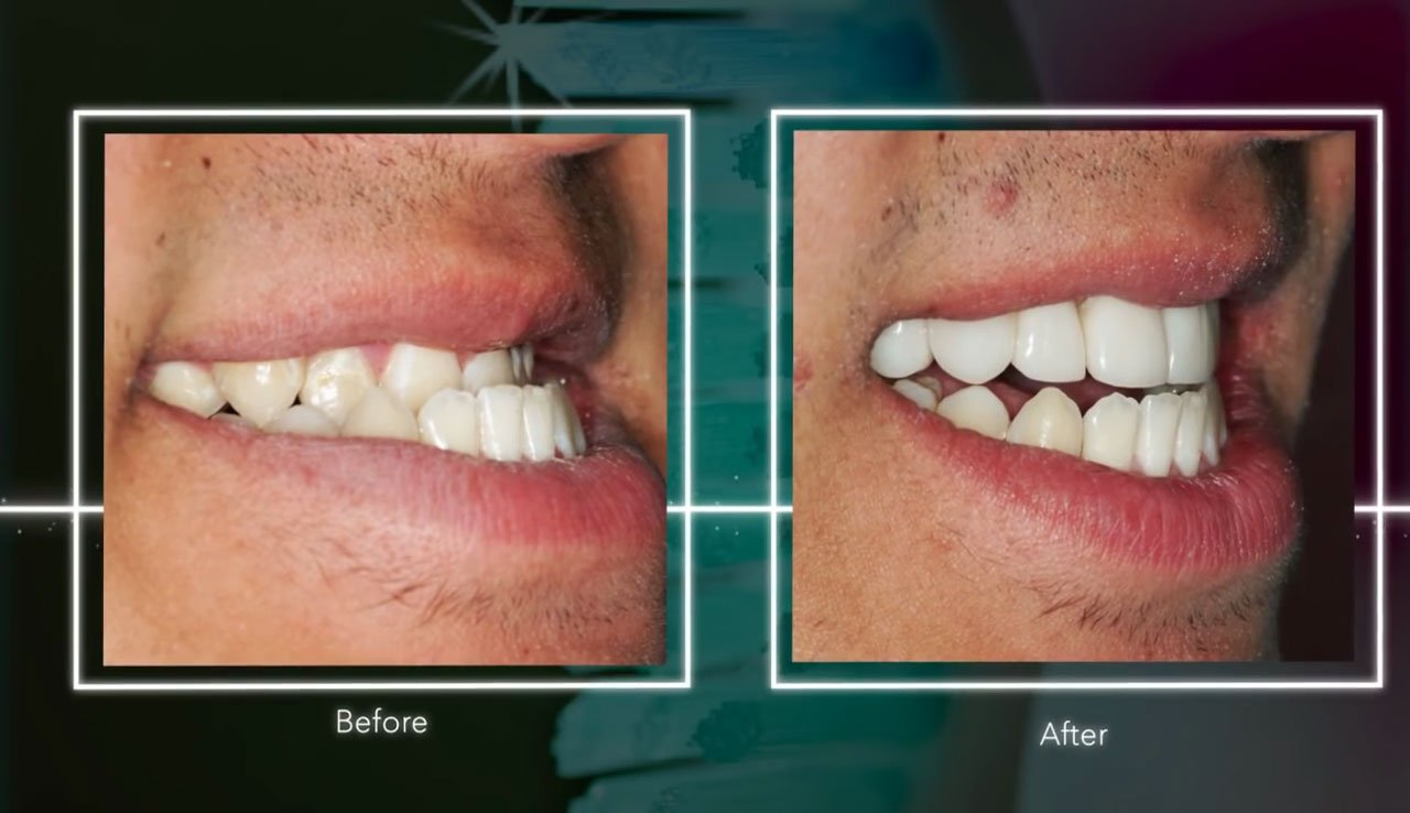 video Underbite Correction with VENLAY<sup>&reg;</sup> Restorations