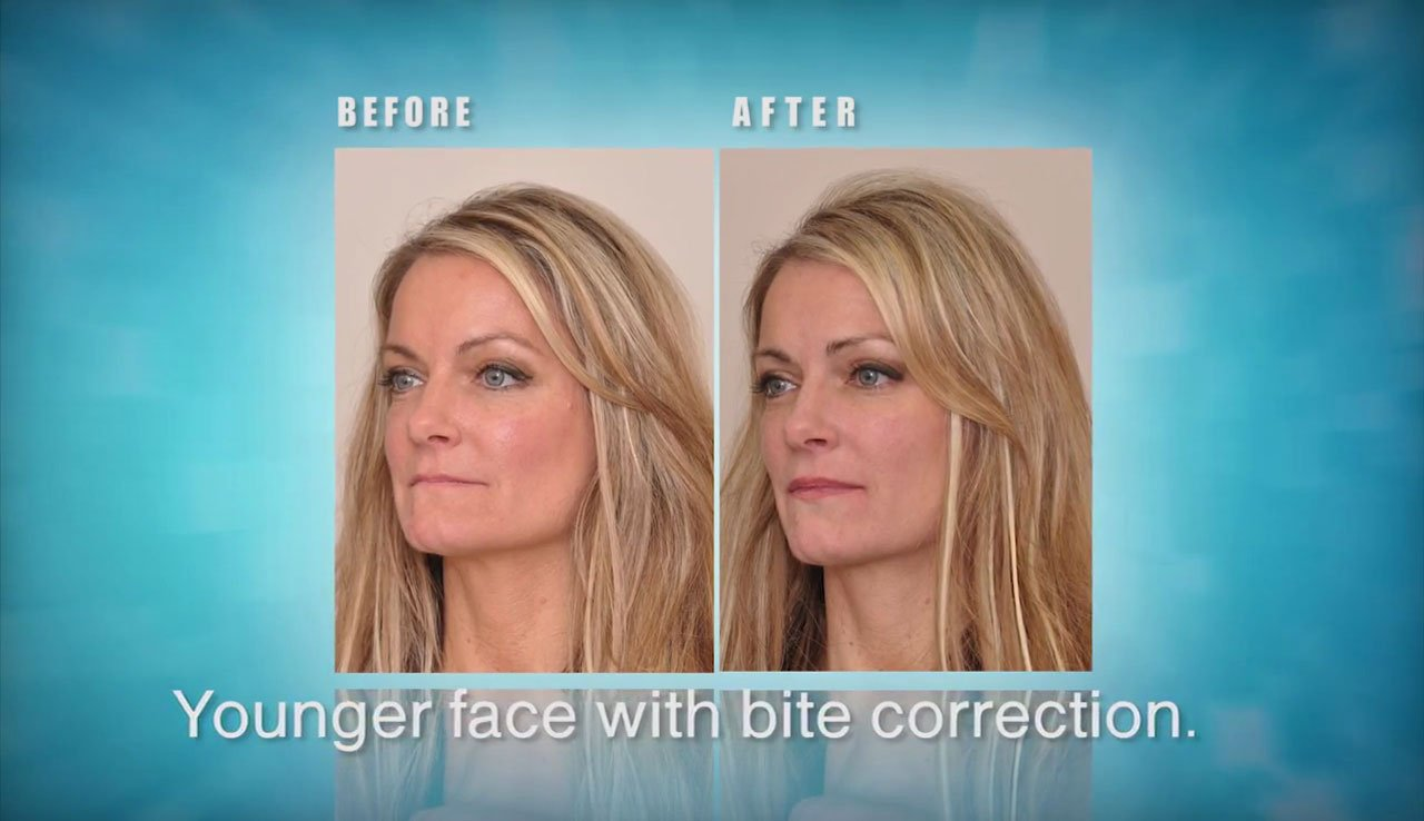video Facelift Dentistry® Cannot Be Done With Porcelain Veneers