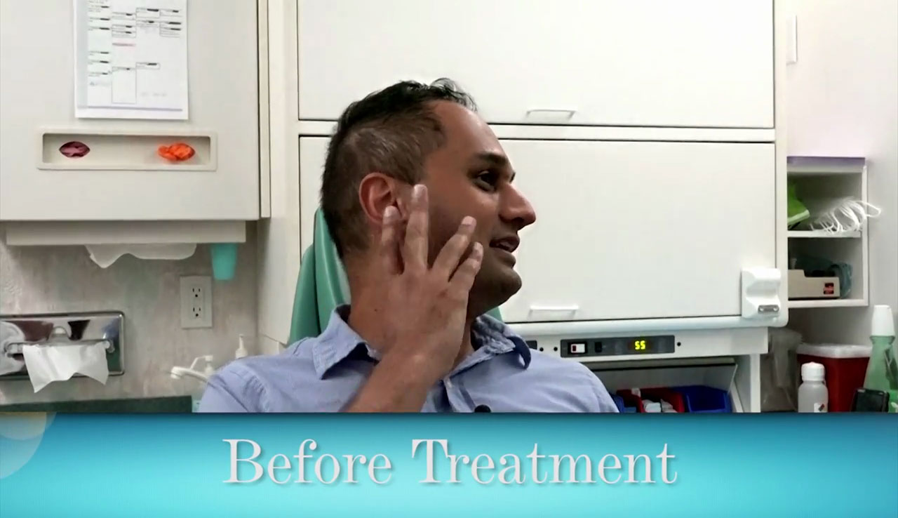 video Deep Overbite Correction without Surgery or Braces