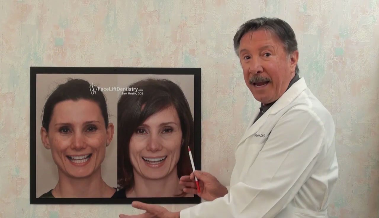 video Overbite Correction Reverses the Effects of Aging