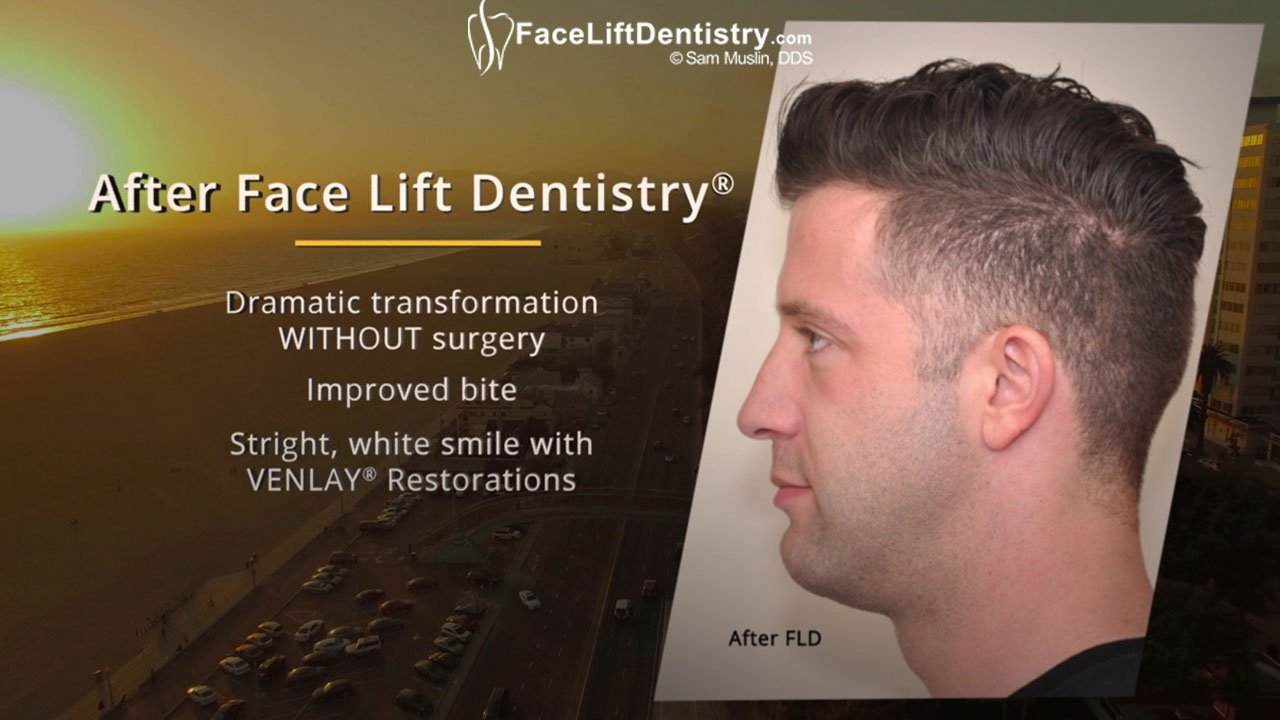 Patient Video Testimonial, talking about Overbite and Small Chin Correction